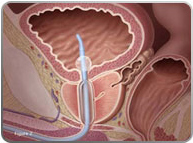 tumt prostate surgery)